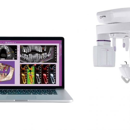 Datortomografi. Teknologisk diagnostik.